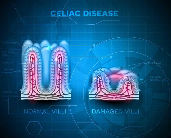 Celiac là bệnh gì? Dấu hiệu, triệu chứng và nguyên nhân