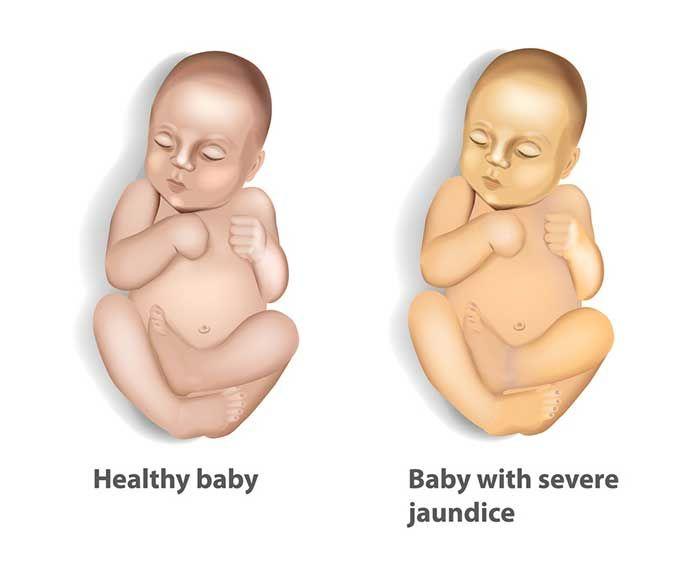 Nguyên nhân và dấu hiệu nhận biết bệnh vàng da ở trẻ em