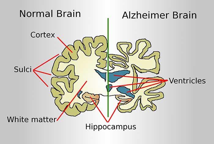 Alzheimer là bệnh gì? Có di truyền không?