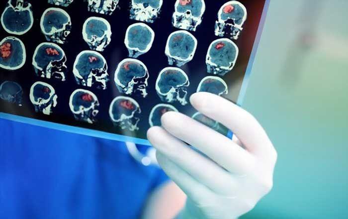 Bệnh ung thư não: Nguyên nhân, triệu chứng, dấu hiệu và chẩn đoán