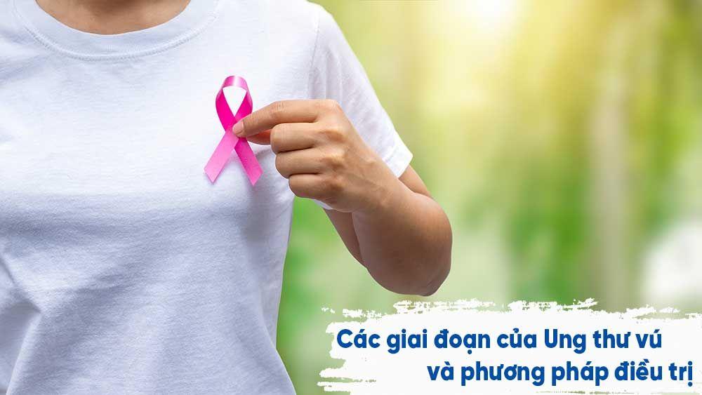 Các giai đoạn của Ung thư vú và phương pháp điều trị