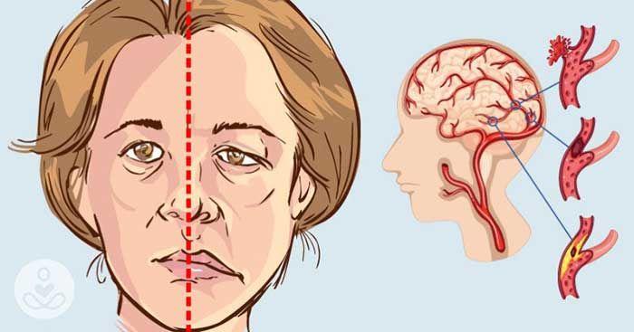 Đột quỵ là gì? Dấu hiệu, triệu chứng và cách phòng ngừa