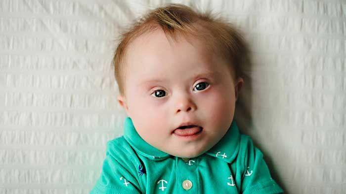 Hội chứng Down là gì? Có di truyền không?
