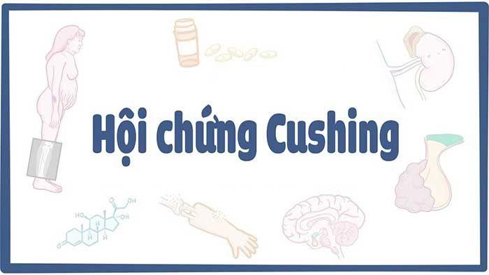 Hội chứng cushing là bệnh gì? Nguyên nhân và cách điều trị