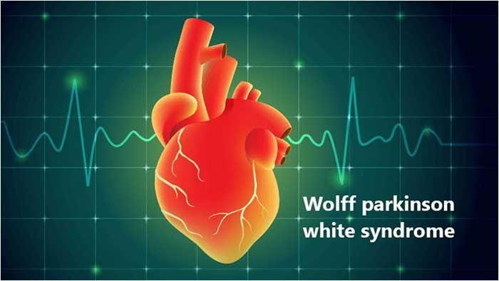 Hội chứng Wolff-Parkinson-White (WPW) là gì? Triệu chứng và nguyên nhân