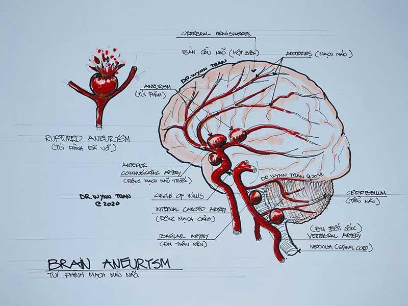 Những nguyên nhân phổ biến của đột quỵ là gì?