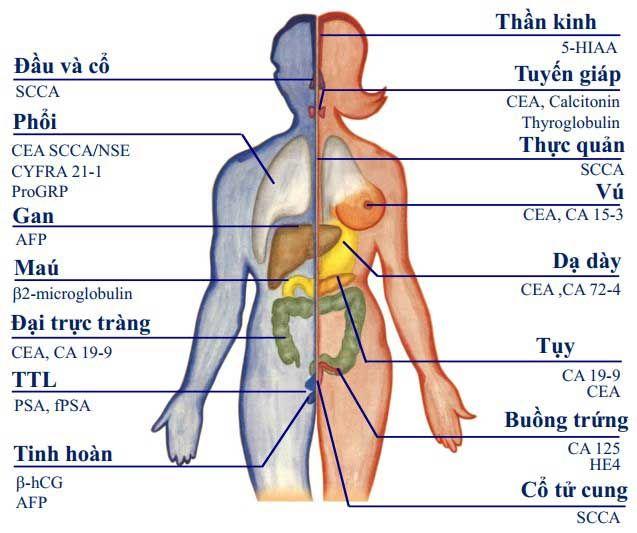 Chất chỉ điểm ung thư là gì? Vai trò và ý nghĩa tầm soát