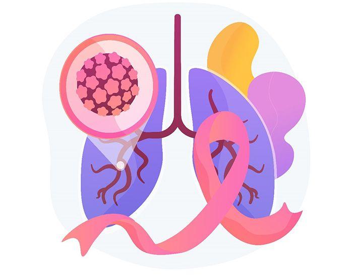 Triệu chứng và dấu hiệu nhận biết sớm của bệnh Ung thư phổi