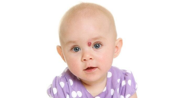 U mạch máu ở trẻ: chẩn đoán, biến chứng, cách điều trị