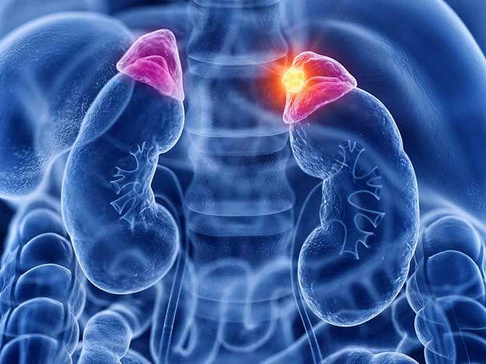 Bệnh U tủy thượng thận là gì? Nguyên nhân, triệu chứng và hậu quả