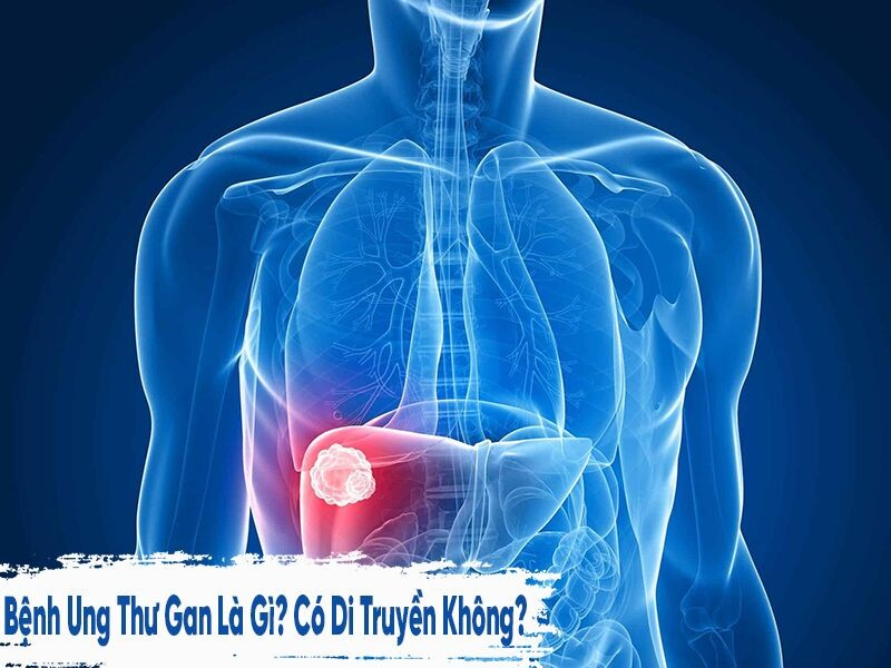 Bệnh Ung thư gan là gì? có di truyền không?