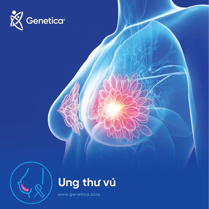 Ung thư vú là gì? Dấu hiệu, triệu chứng nhận biết ung thư vú